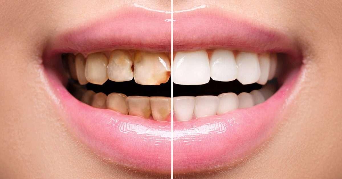 faccette-dentali-centro-odontoiatrico-palermo-1200x629.jpeg