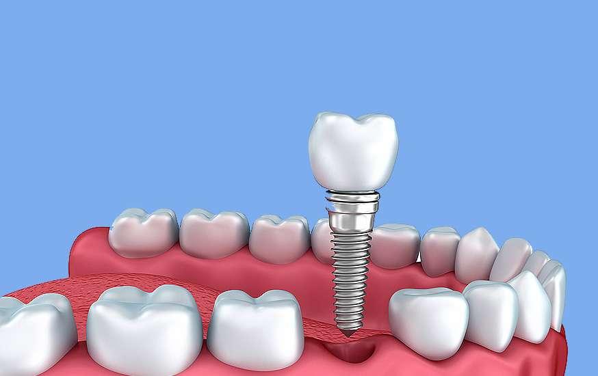 implantologia-a-carico-immediato.jpg
